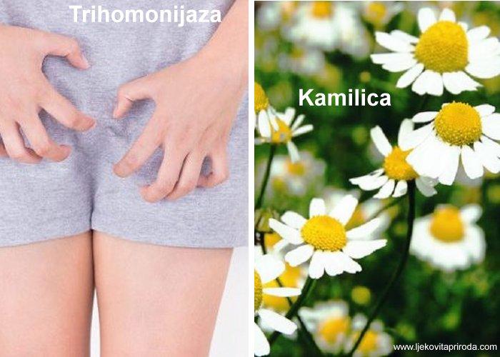 Trihomonijaza, bolest koju liječi kamilica, luk i češnjak.