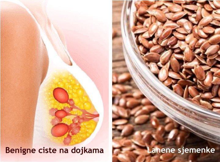 Ljekovite biljke protiv dobroćudnih cista na dojkama