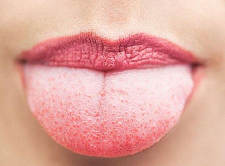Metvica – lijek za geografski jezik