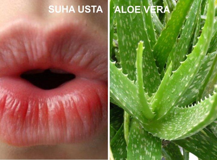 Domaći lijekovi za suha usta